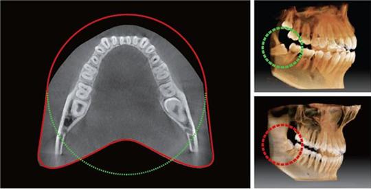 """Nuevo Vatech 3D Green Smart """"Volumen en forma de Arco"""""""