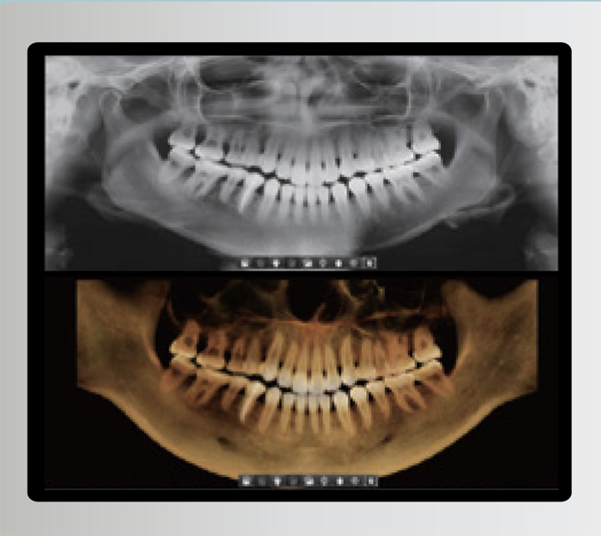 Radiografía 3D y 2D con un solo disparo Smart Plus de Vatech