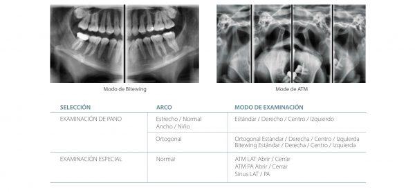Modos de estudio radiograficos con nuestro Rayos X digital Pax-i de Vatech