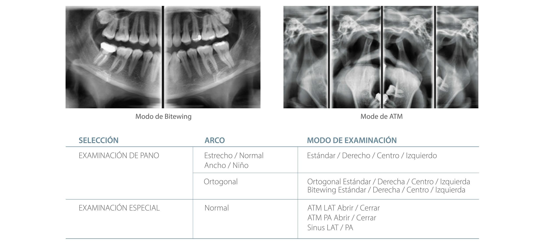 Modos de estudio radiograficos con nuestro Rayos X digital Pax-i
