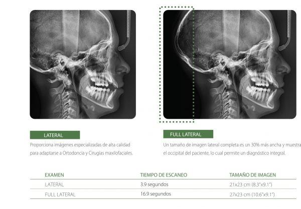 Rayos X dental Panorámico Pax-i 3D Green CBCT Vatech Ceph