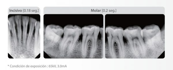Rayos X intraoral EzRay de Vatech Punto focal 0.4 mm