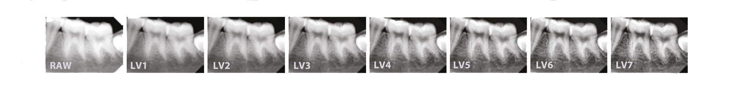 Nuestro captador intraoral EzSensor HD aplica nuevos filtros de contraste