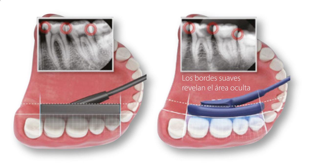 Sensor intraoral EzSensor Soft reduce la superposición ente cada diente