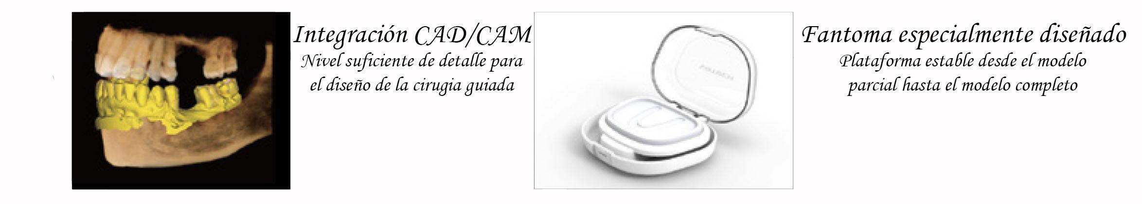 Diseño cirugía guiada y Escaneado de modelos Smart Plus 3D de Vatech