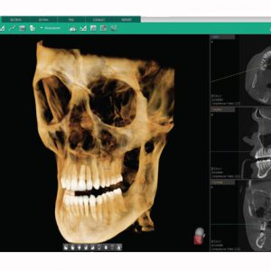 Visor rayos X dental telepanorámico 3D Vatech Ez3D-i