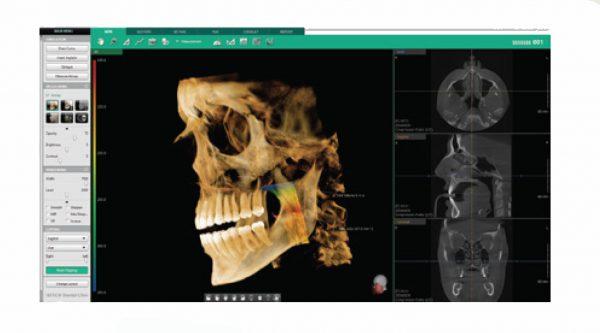Rayos X dental precio Software Ez3D-i vía áerea