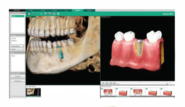 Rayos X dental precio herramienta de consulta Ez3D-i