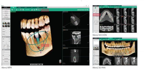 Rayos X dental precio Software 3D Ez3d-i