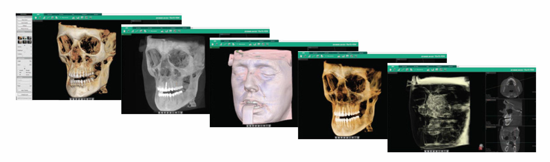 Rayos X dental precio Software Ez3D-i
