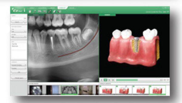 Rayos X dental precio consulta virtual con EzDent-i de Vatech