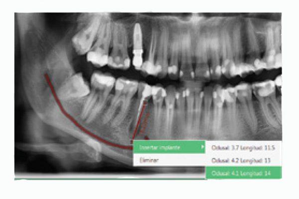 Rayos X dental precio análisis de primer nivel EzDent-i