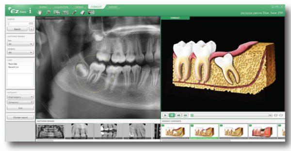 Rayos X dental precio consulta imágenes y pacientes con EzDent-i