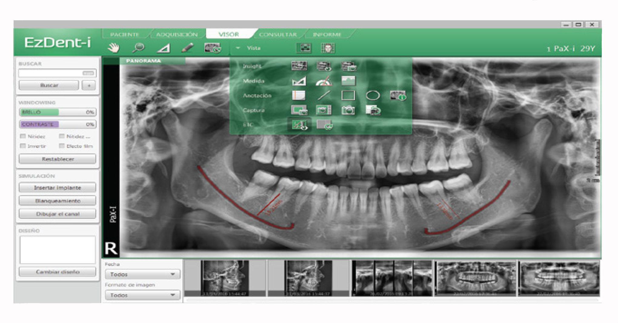 Rayos X dental precio Software radiología dental EzDent-i