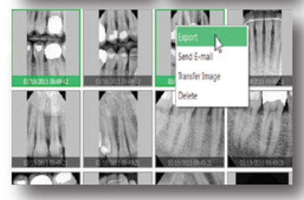 Rayos X dental precio Gestión de imágenes fácilmente con EzDent-i