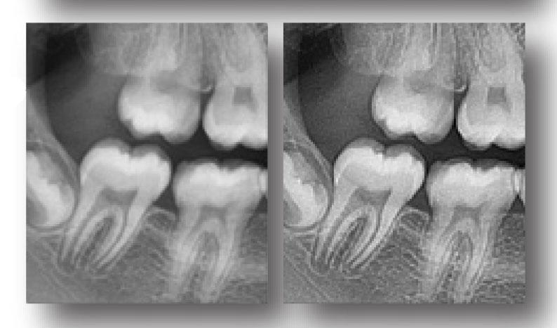 Rayos X dental precio EzDent-i aprovechando al máximo sus imágenes