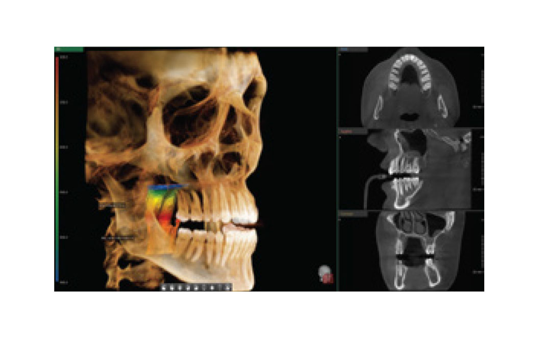 Rayos X dental panorámico Pax-i 3D Green CBCT Vatech