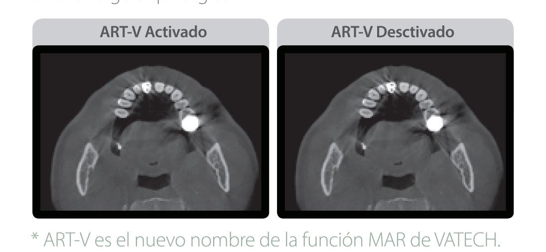 Rayos X dental precio Green 16/18 reduce el artefacto metalico