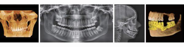 Rayos X dental precio Green 16/18 4 en 1
