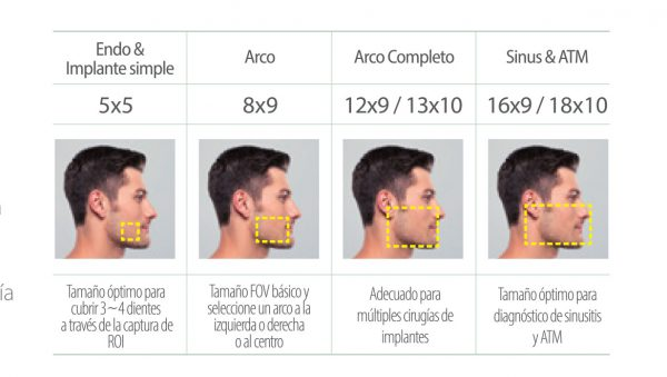 Rayos X dental precio Multi FOV Green 16/18 de Vatech