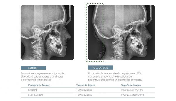 Cefalometria lateral y full lateral ortodoncia Pax-i de Vatech