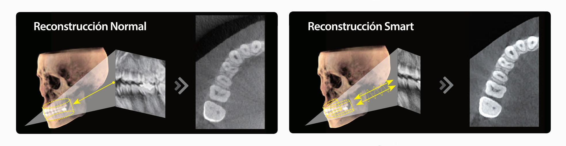 Mejoramos tecnología de reconstrucción de imágenes Smart Plus 3D de Vatech